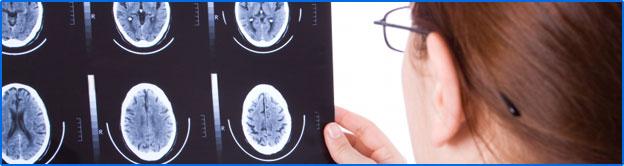 i-brainspineinjury